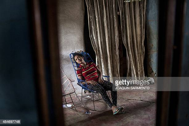 Beatriz Martinez who has been at the hospital sixteen times recovers after fainting at her house in Carmen de Bolivar Bolivar Province Colombia on...