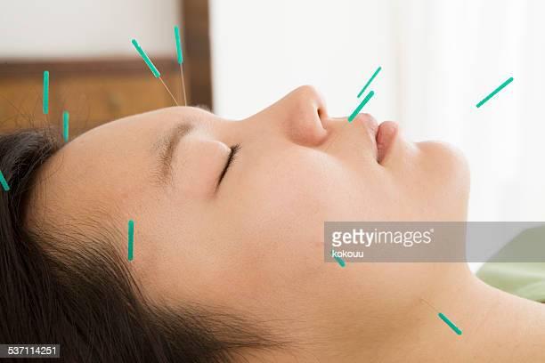 美しいフェイシャル鍼灸