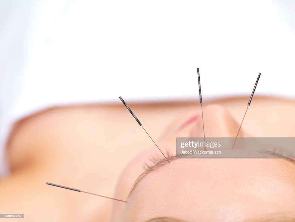 Beautiful young woman getting acupuncture therapy : Bildbanksbilder