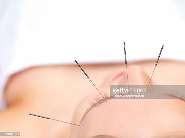 beautiful young woman getting acupuncture therapy - acupuncture needle stock pictures, royalty-free photos & images