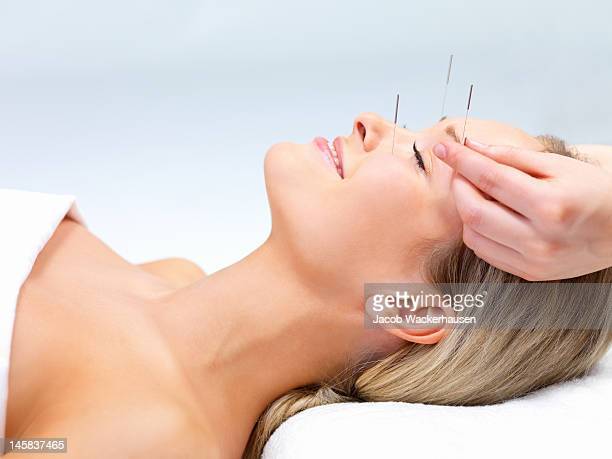 beautiful young woman with eyes closed receiving acupuncture therapy - acupuncture needle stock pictures, royalty-free photos & images