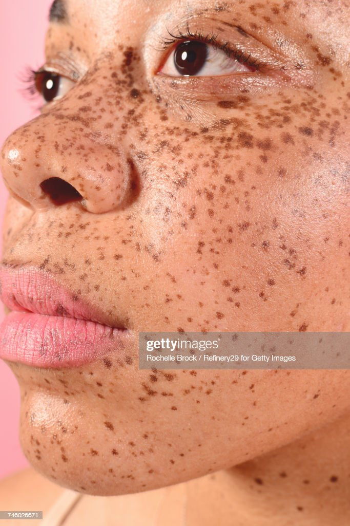 Beauty Portrait of Young Confident Woman with Freckles : Stock Photo