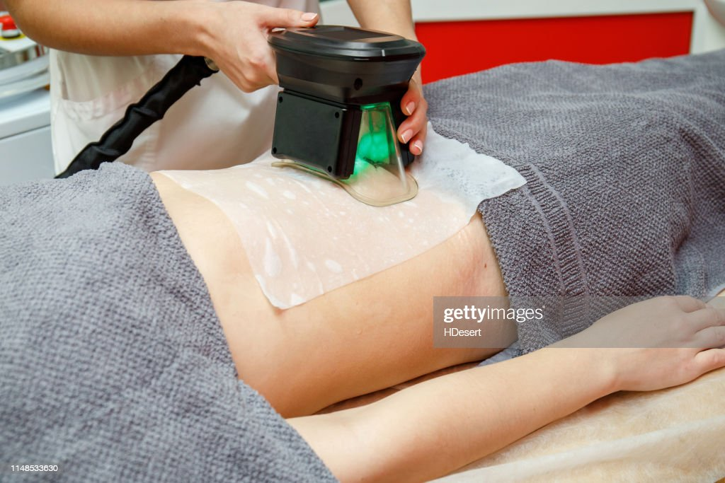 Beauty therapist applying cryolipolysis treatment. Non-surgical fat reduction : Stock Photo