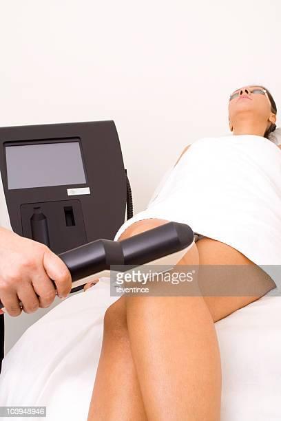 trattamento di bellezza - cellulite foto e immagini stock