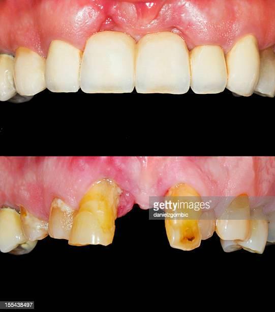 Before & After Smile Design