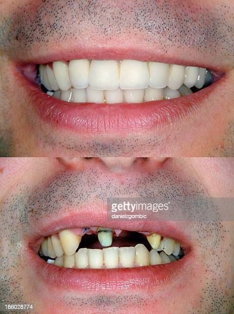 before & after smile design - ugly lips stock photos and pictures