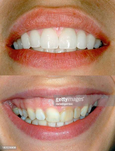 before & after smile design - ugly girl stock photos and pictures