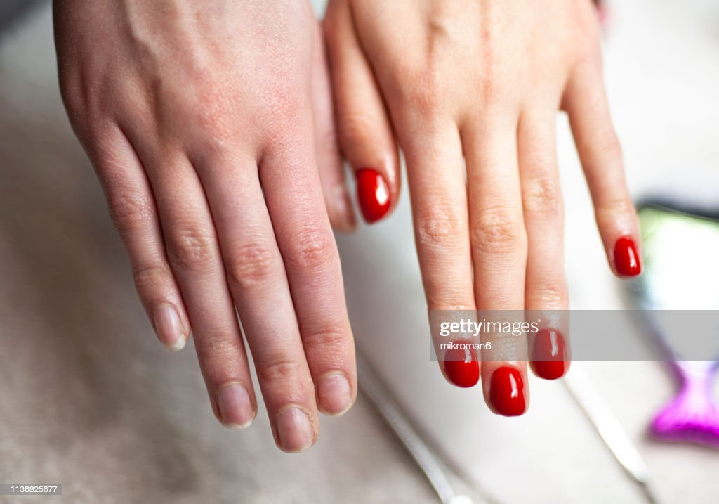 Before and after nail manicure : Stock Photo