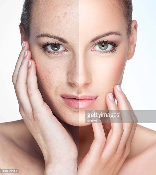 before and after. - medical laser stock photos and pictures
