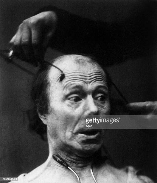 Before electric stimulation anticipation of the shock with expression of fear on the face of the patient study on emotional expression photo by...