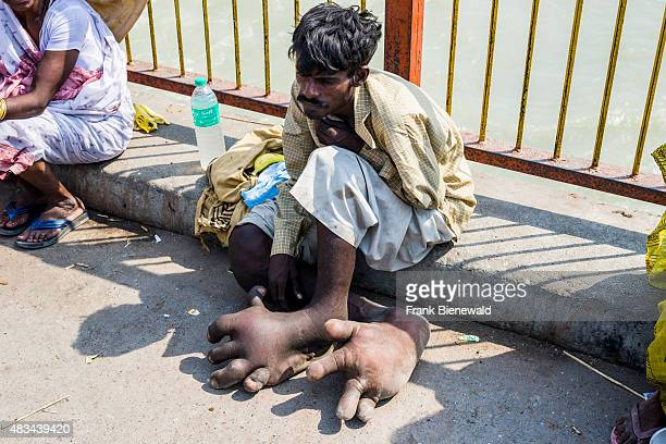 HARIDWAR UTTARAKHAND INDIA A beggar with Elephantiasis at his feet is sitting at Harki Pauri Ghat at the holy river Ganges