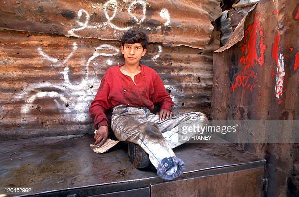 Beirut Lebanon in May 1991 Mechanic of 15 years who lost his leg to a shell while playing with his buddies in the ruins