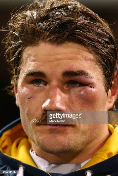 Ben Mowen of the Brumbies sports a black eye and stitches during the round 16 Super Rugby match between the Brumbies and the Rebels at Canberra...