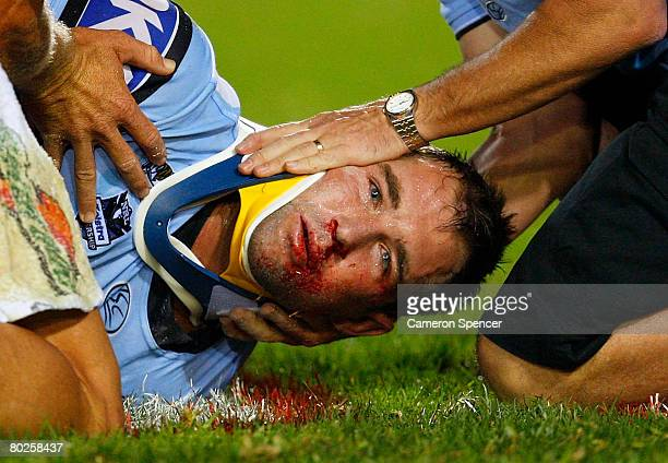 Ben Ross of the Sharks is placed in a neck brace by medical staff after being knocked out in a tackle during the round one NRL match between the...