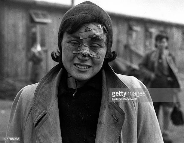 BergenBelsen Concentration Camp An injured woman has survived the horrors of the camp which has been taken over by the Allied 21st Army Group 15th...