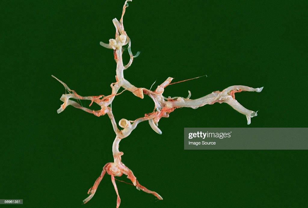 Berry aneurysm : Stock Photo