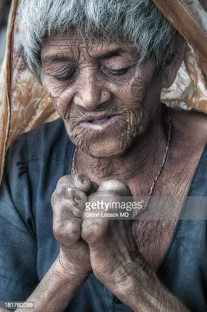 CONTENT] Bhopal INDIA a woman with LEPROSY missing digits in her hands
