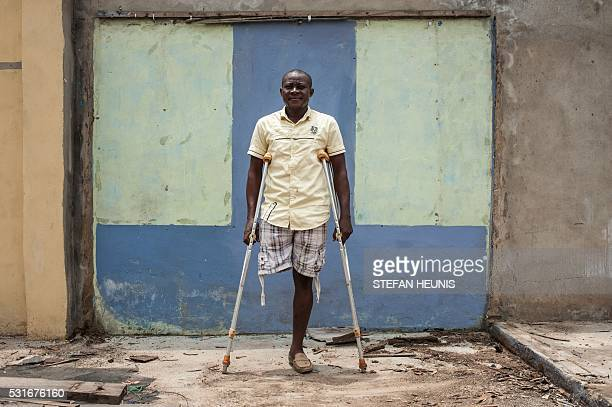 Biafran supporter Amarachi Onyemaechi who lost a leg during a proBiafra protest in 2015 poses for a photo in Port Harcourt on May 3 2016 Over the...