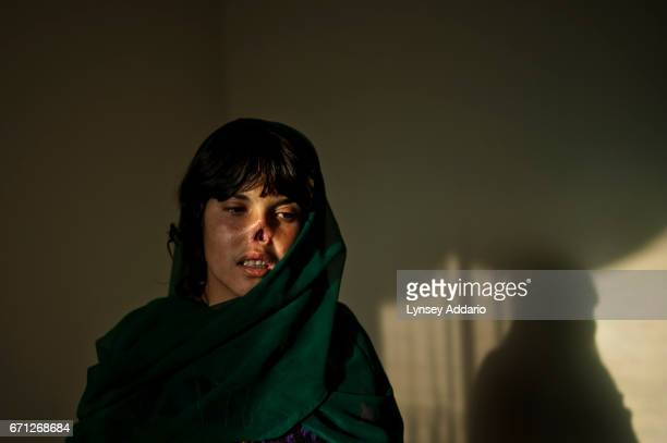 Bibi Aisha was 19 when I met her in Kabul's Women for Afghan Women shelter in November 2009 Her husband beat her from the day she was married at age...