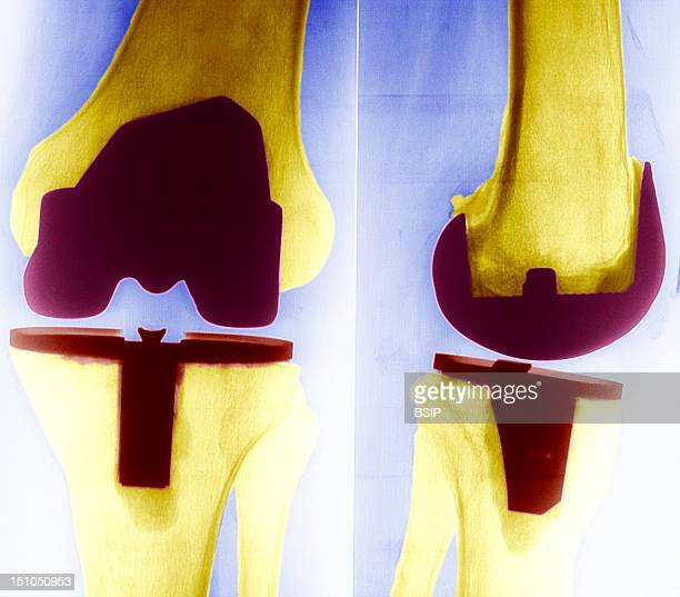 Bicompartimental Prosthesis Of The Knee