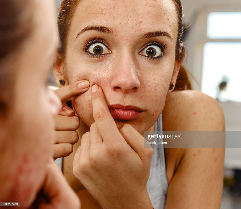 big acne : Stock Photo