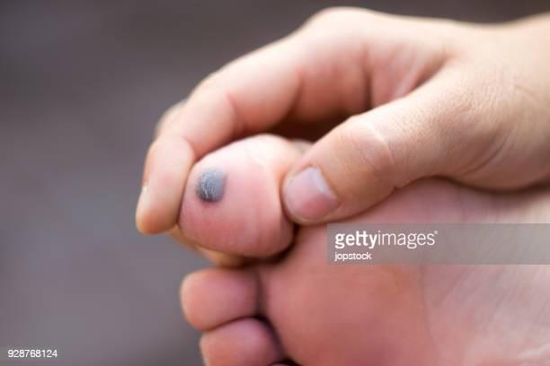 big toe with bruise - 人のつま先 ストックフォトと画像