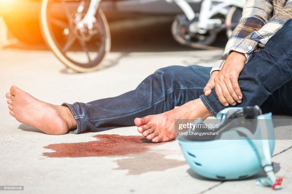 Bike Accident : Stock Photo