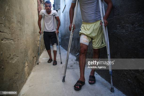 Bilal and Said Diyab try to walk with crutches after Israeli forces opened fire on demonstrators and their siblings Muhammed and Ahmed Diyab...