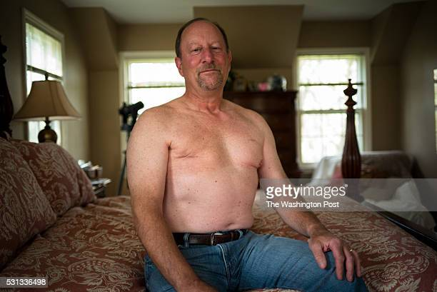 Bill Rotter a breast cancer survivor show is mastectomy scar as he sits for a portrait at his home Friday May 13 in Mequon WI