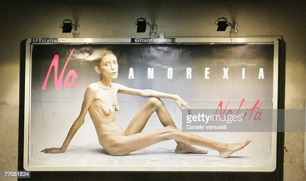 A billboard reading 'No Anorexia' shows an Italian advertising campaign featuring French comedian and anorexia sufferer Isabelle Caro photographed by...