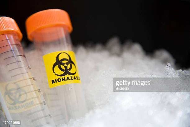 Biohazard samples.