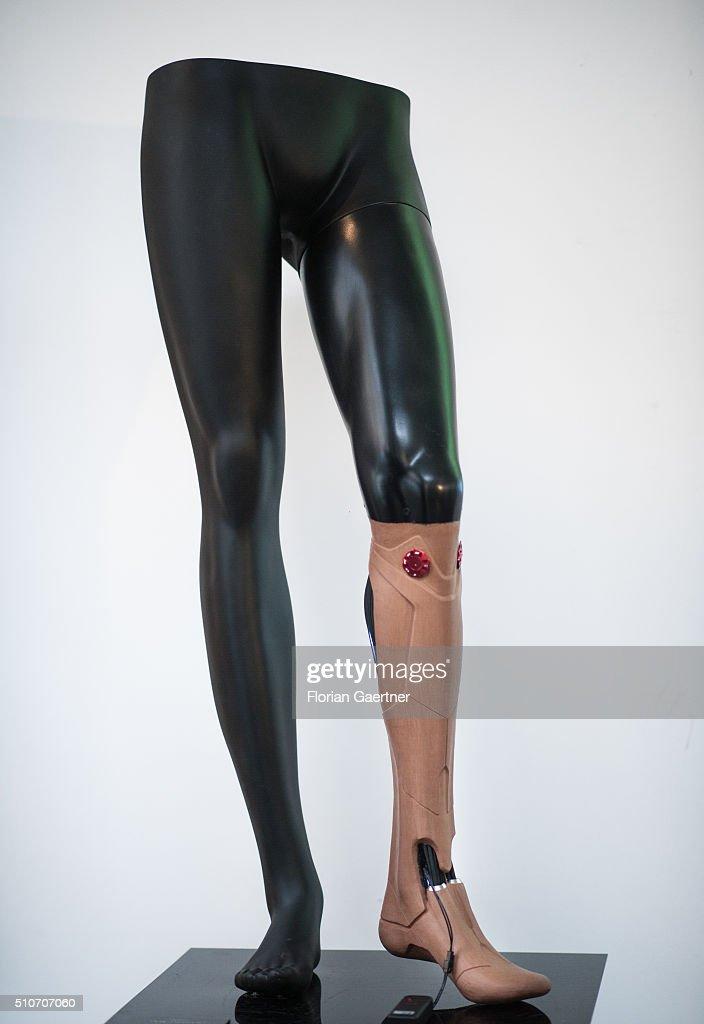 Bionic Prosthetic : News Photo