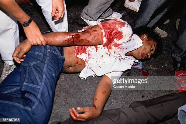 Bird shot injuries from the scenes of violence and mayhem that took place at the Grand Parade in Cape Town among the crowd awaiting Mandela's release...