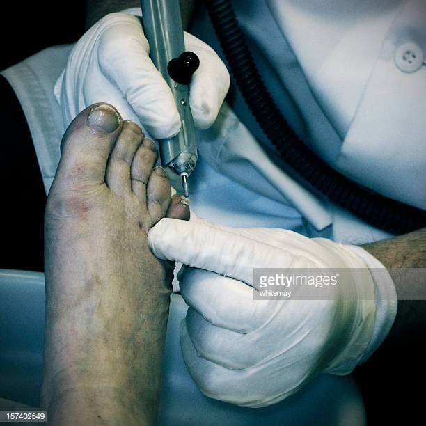 black and white image of chiropody treatment. - images of ugly feet stock photos and pictures