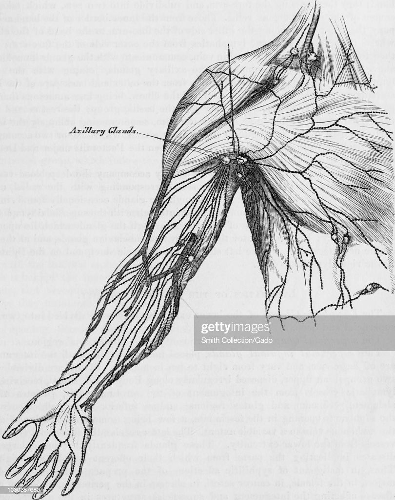 Axillary Lymph Nodes Pictures   Getty Images