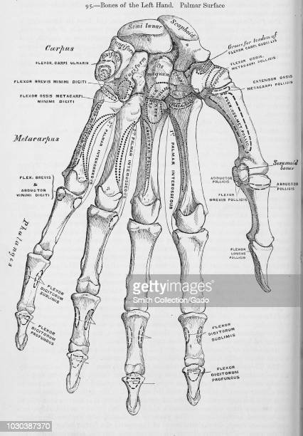 Black and white print showing the bones in a human left hand on the palmar surface illustrated by Henry Vandyke Carter and published in Henry Gray's...