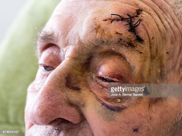 Black eye and stitches by a stroke