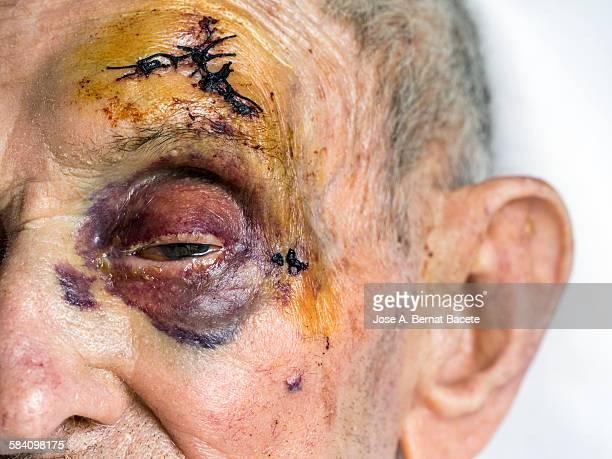 black eye and stitches by a stroke - medical stitches - fotografias e filmes do acervo