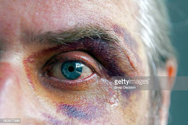 black eye, close-up - bruise stock photos and pictures