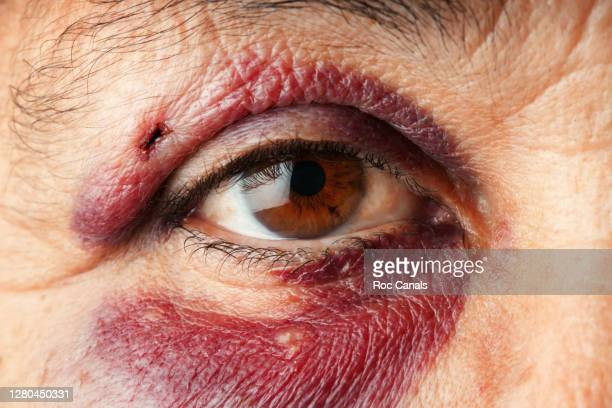 black eye - bloodshot stock pictures, royalty-free photos & images