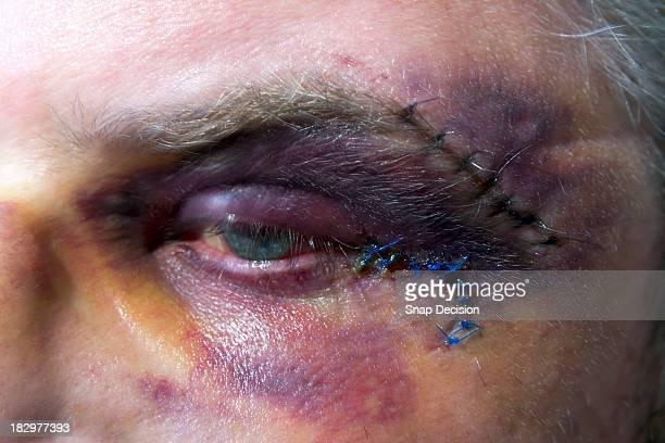 black eye - hombre golpeado fotografías e imágenes de stock