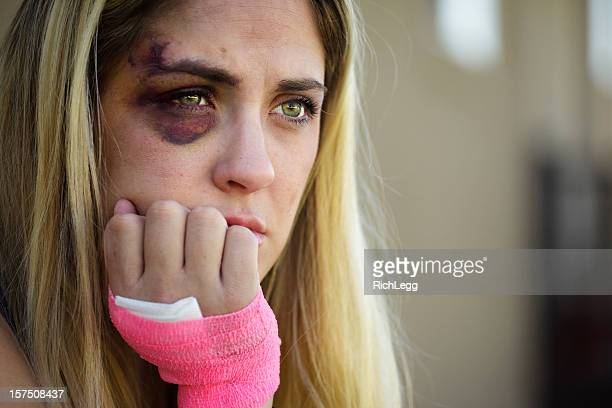 black eyed woman - bruise stock pictures, royalty-free photos & images