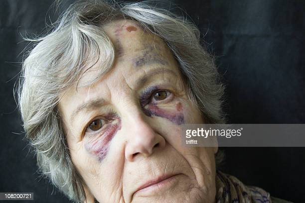 black eyes. - bruise stock photos and pictures