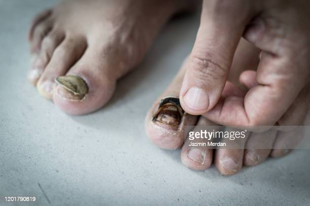 black toenail peeling off - images of ugly feet stock pictures, royalty-free photos & images