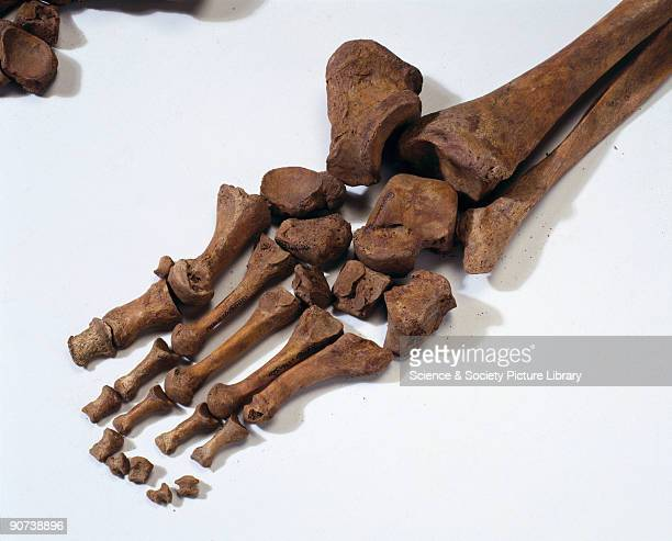Bleadon Man was one of two skeletons discovered when building began on a new housing estate on Whitegate Farm Bleadon Somerset in 1998 The...