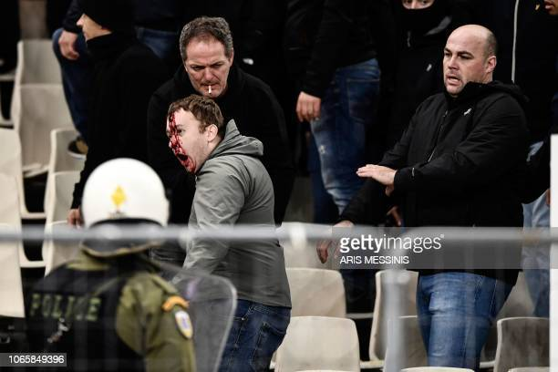 TOPSHOT A bleeding Ajax fan reacts after clashes with Greek riot police prior to the start of the UEFA Champions League football match between AEK...