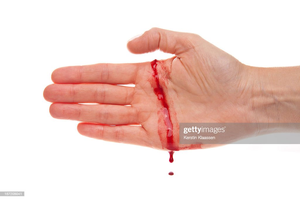 Bleeding hand with a real cut : Stock Photo