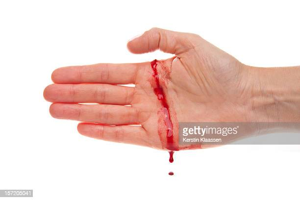 Bleeding hand with a real cut