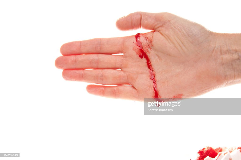 Bleeding Hand With A Real Cut Stock Photo Getty Images - Bleeding us map