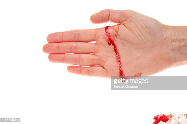 bleeding hand with a real cut - hand laceration stock photos and pictures